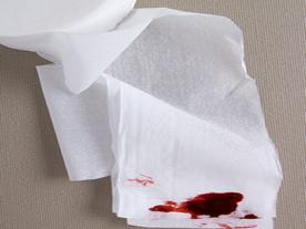 Minor-Rectal-Bleeding