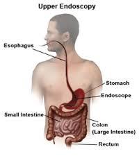 upper-endoscopy